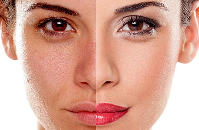 Tẩy da chết đều đặn để cải thiện sự đều màu da