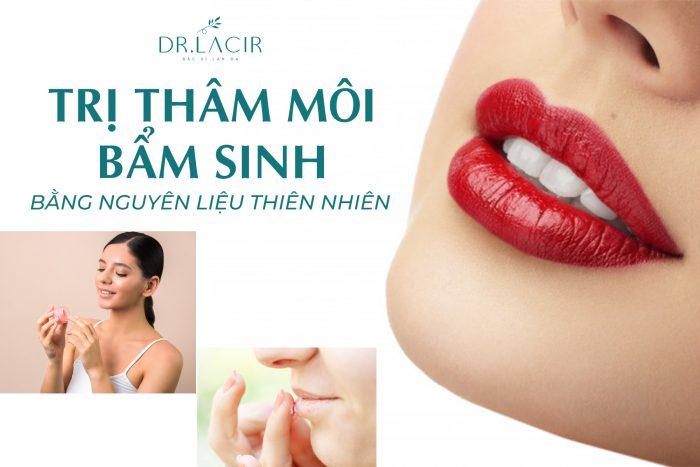 các mẹo trị thâm môi bẩm sinh